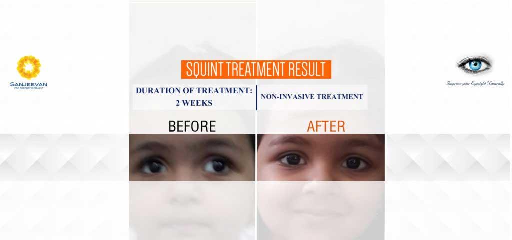 Colour therapy for myopia - Sanjeevan_1600x750_banner Copy