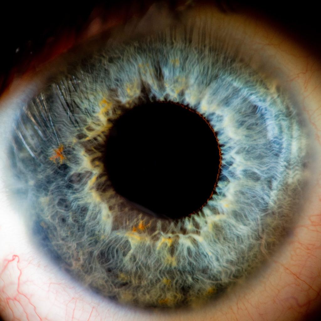 Vision in Retinitis Pigmentosa blog